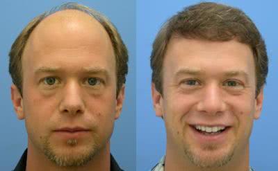 Transplante capilar tem resultados definitivos