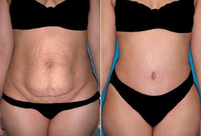 Abdominoplastia - Diminuição das estrias