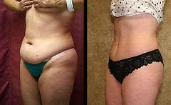 Diminuição de excesso de gordura no abdômen