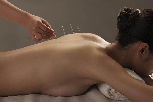 A acupuntura é uma técnica milenar que consegue tratar doenças e evitá-las