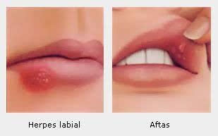 Diferença entre aftas e herpes