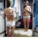 Anorexia –  causas e tratamentos desta doença