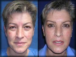 remover bolsas sob os olhos custo da cirurgia