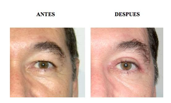 Blefaroplastia - Antes e depois