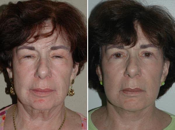 Blefaroplastia - Melhora antes e depois