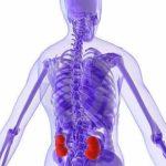 Cálculos Renais: o que é, causas, sintomas, prevenção e tratamentos