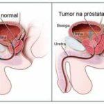 Câncer de Próstata: O que é? Causas, sintomas e tratamentos