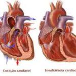 Câncer e o coração