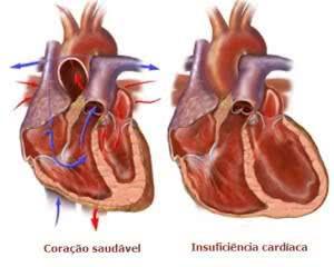 Coração com Insuficiência Cardiaca