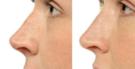 Cirurgia plástica Bioplastia – preços e fotos de antes e depois