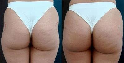 Antes e depois da bioplastia dos glúteos