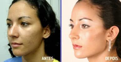 Bioplastia Facial Completa