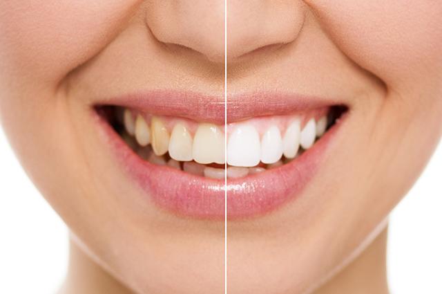 Dentes amarelados e dentes brancos