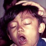 Coqueluche: o que é? Causas, sintomas, prevenção e tratamento