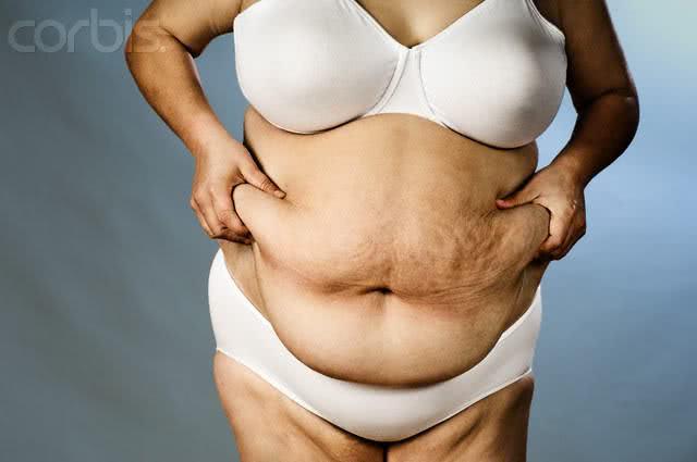 Corpo de mulher com efeito sanfona