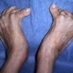 Doença de Paget: o que é, causas, sintomas e tratamentos