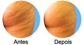 Celulites