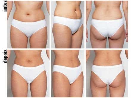 Redução de gordura