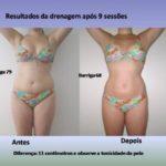 Fotos antes e depois de drenagem linfática