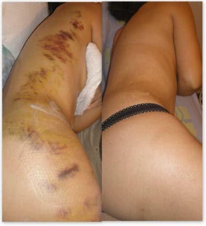 Tratamento de hematomas no corpo