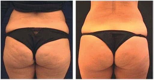 Antes e depois da drenagem linfática