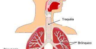 Fique por dentro: causas mais comuns da Pneumonia