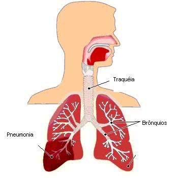 Imagem - Pneumonia