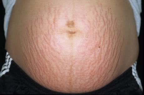 Estrias durante a gravidez