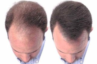 Fotos de antes e depois de cirurgia de TRANSPLANTE CAPILAR