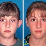 Fotos de antes e depois de otoplastia