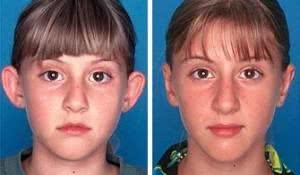 fotos-de-antes-e-depois-de-otoplastia