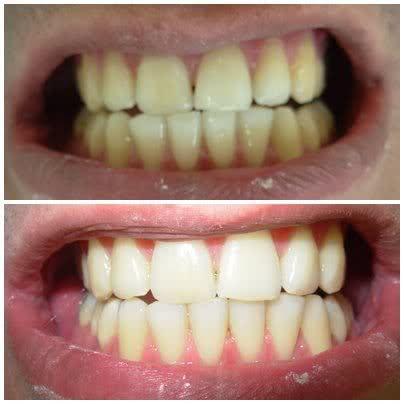 Fotos De Antes E Depois Do Clareamento Dos Dentes