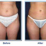 Fotos: Antes e depois de cirurgia de lipoaspiração
