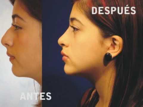 Mentoplastia com implante