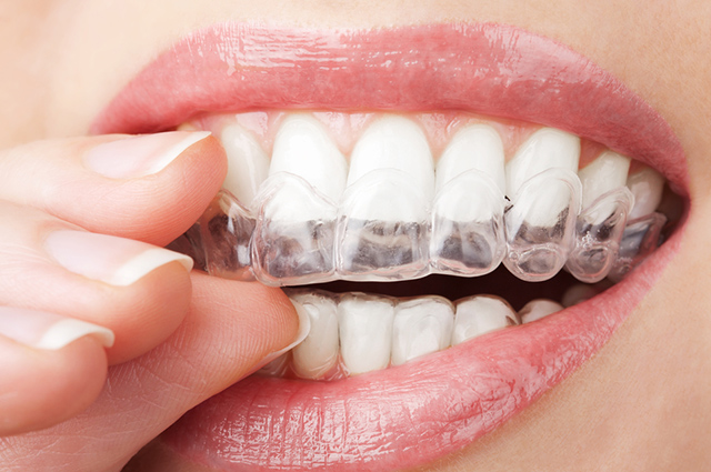 Molde para clareamento dental