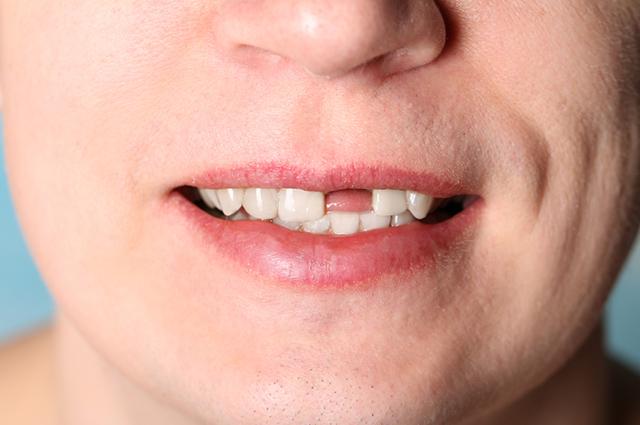 Sonhar que perdeu um dente pode ter significados muito ruins