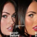 Rinoplastia – fotos de antes e depois