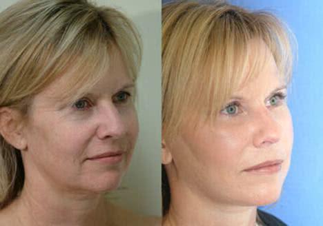 Antes e depois - Foto