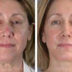 Ritidoplastia – fotos de antes e depois da cirurgia