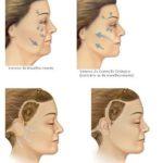 Ritidoplastia – preço da plástica de rejuvenescimento do rosto
