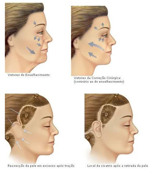 Ritidoplastia - preço da plástica de rejuvenescimento do rosto