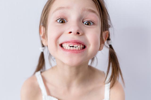 Sonhar perdendo dentes tem relação com medos e problemas pessoais não resolvidos