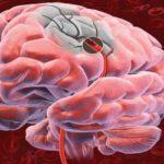 Trombose cerebral – o que é? quais os sintomas?