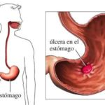 Úlcera – sintomas, causas e prevenção