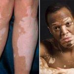 Vitiligo: o que é? Causas e tratamento?